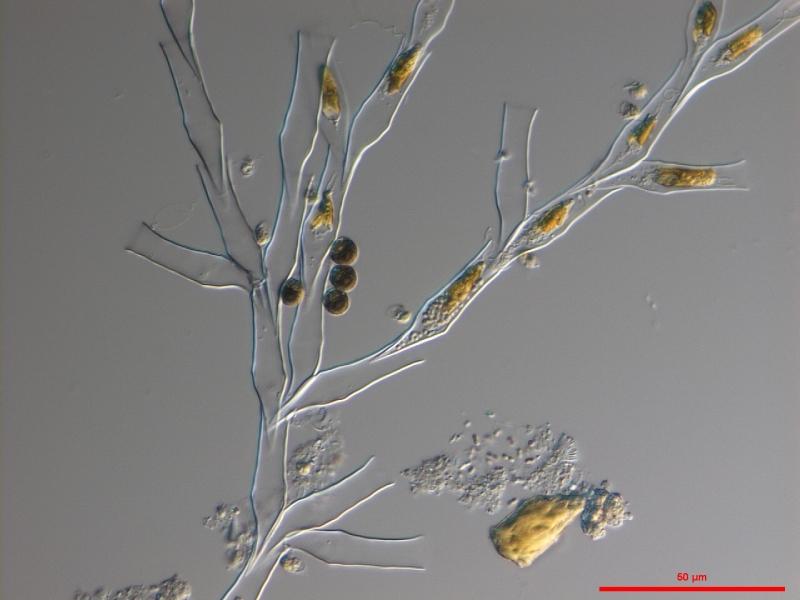 Dinobryon divergens